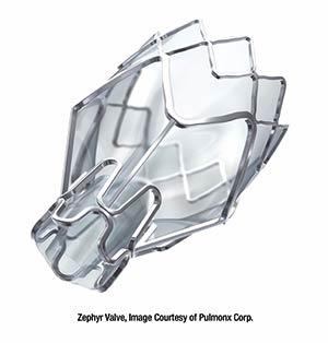 Zephyr® Endobronchial Valve