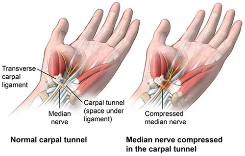 Carpal tunnel locations