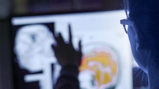 Neurosurgeon evaluating scan